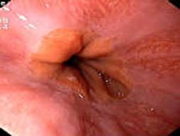 Prawidłowe obrazy endoskopowe górnego odcinka przewodu pokarmowego, 1