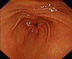 Prawidłowe obrazy endoskopowe górnego odcinka przewodu pokarmowego, 3