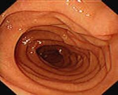 Prawidłowe obrazy endoskopowe górnego odcinka przewodu pokarmowego, 5