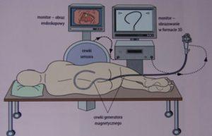 Ułożenie pacjenta podczas kolonoskopii