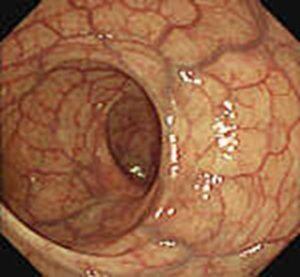 Prawidłowe obrazy endoskopowe jelita grubego, 1