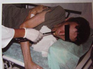 Ułożenie pacjenta podczas badania.